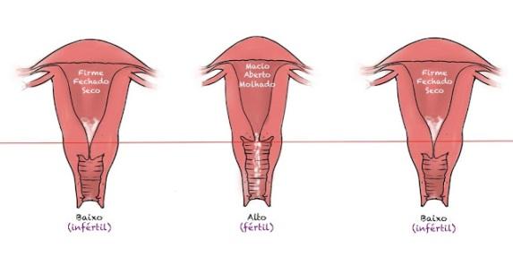 colo do utero sinais